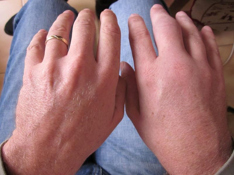 gonflement main et pied